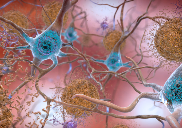 Le cellule nervose e le placche tipiche della malattia di Alzheimer (fonte: National Institute on Aging, NIH, Flickr) © Ansa